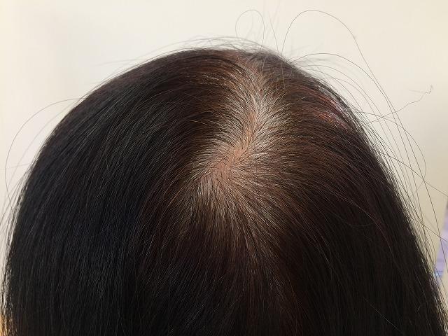 地肌が目立った頭髪や白髪を同時に隠せるスペシャルアイテムをご紹介します