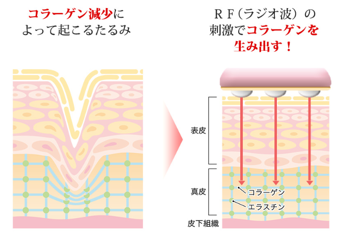 ラジオ波は肌の奥にあるコラーゲンに刺激を与えて新しいコラーゲンの産生を促してくれるのでたるみに効果があります。