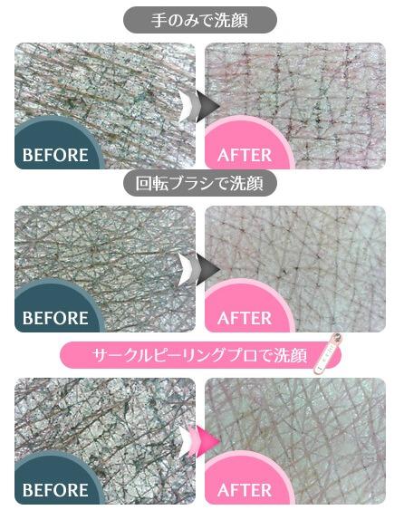手での洗顔と回転ブラシを利用した洗顔、そして超音波美顔器を用いて洗顔した肌状態の違いがよく分かる画像です。