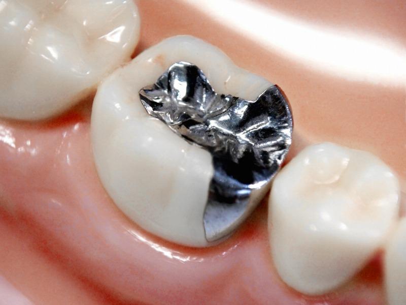 虫歯や銀歯など歯が痛くならない美顔器とは?